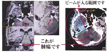 聴神経腫瘍に対する治療計画の具体例